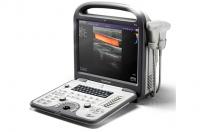 Ультразвковой сканер SonoScape S6 pro