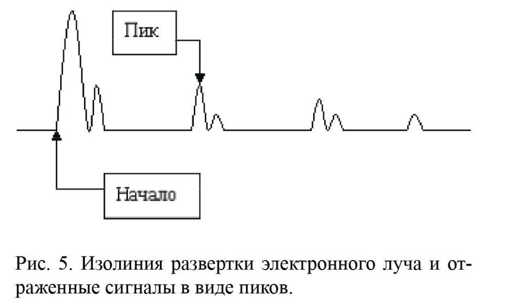 Эхотомография фото
